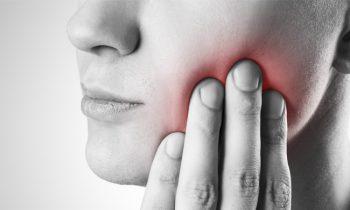 wisdom-teeth-removal-chattanooga
